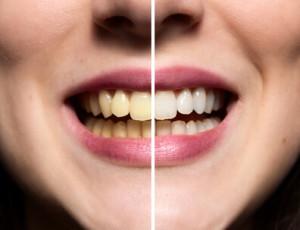 Zähne bleichen mit Backpulver